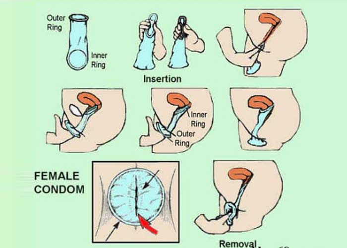 Hướng dẫn cách sử dụng bao cao su cho nữ an toàn và hiệu quả